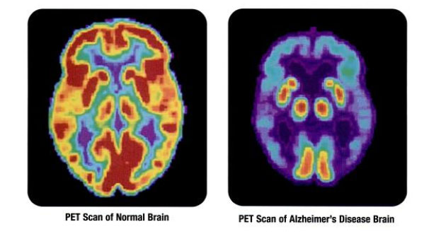 Neurosciences Firm Provides Insight on Recent Alzheimer's/Amyloid Field Developments