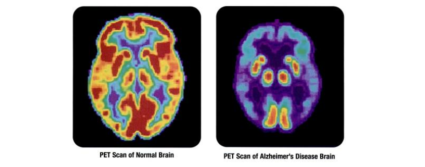 Selectively Targeting Alzheimers Diseases Root Cause Is Key