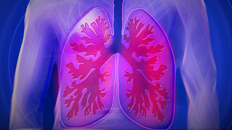 Pharma Developer Contemplates Adding Lung Scarring as Key Endpoint in Phase 2b/3 COVID-19 Trial